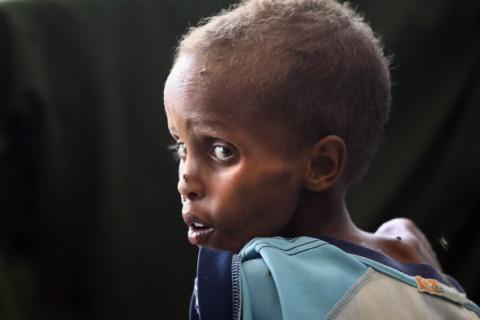 Staving Somali child, 2011. Photo by John Moore/Getty Images