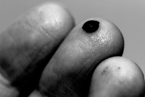 Pricked finger, Chris G. Walker / Shutterstock.com
