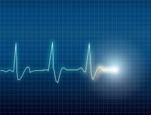 Electrocardiogram, Eskemar / Shutterstock.com